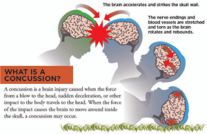 What You Need to Know About Head Injury